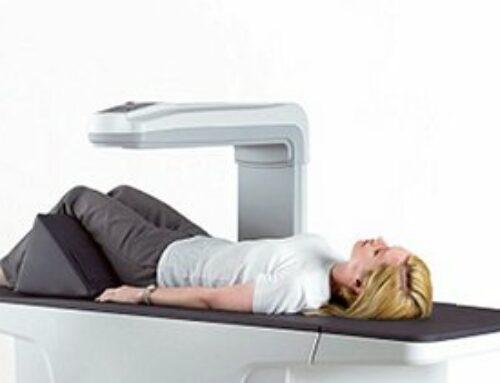 Densitometria óssea: o exame que detecta a osteoporose