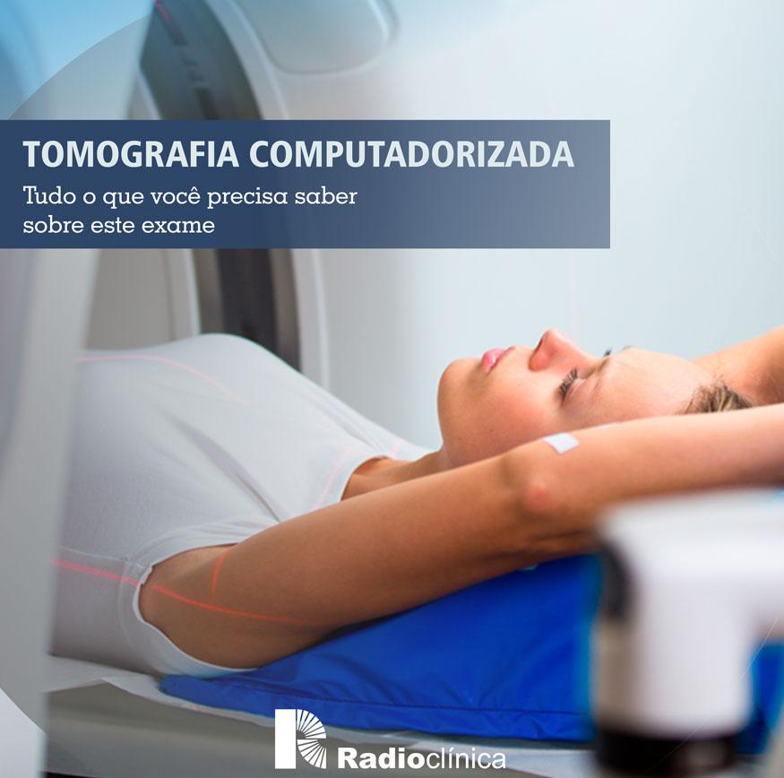 Tomografia Computadorizada | Radioclínica